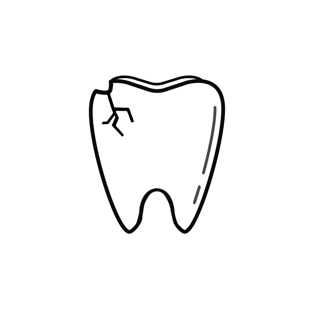 I Chipped a Tooth! What Can I Do?  | Pueblo West Dentist